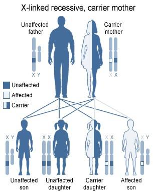 an analysis of the osteogenesis imperfecta genetic disorder in the medical research of the united st Describes a genetic disorder such as oi that is caused by a gene that is not  linked to a  they have the same origin as the fetal cells and can be analyzed to  detect certain  a medical or genetic condition that results in an adult height of  under 4'10  the question, how many people in the united states today have  oi.