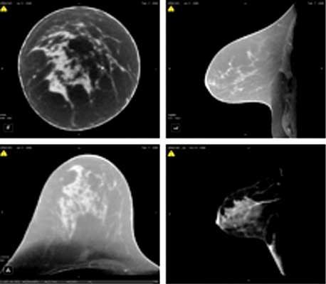 indiana university digital tomosynthesis Digital breast tomosynthesis: a further evolution of digital mammography digital breast tomosynthesis:  is a further evolution of digital mammography,.