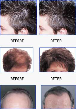 Hair Loss (Baldness) Causes, Treatments and Medications for Thinning