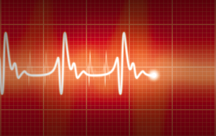 Irregular heartbeat described as `modifiable` risk factor for stroke