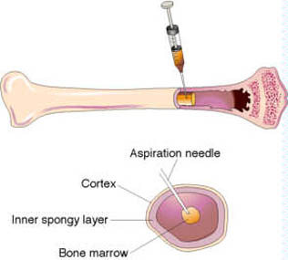 http://www.topnews.in/health/files/bone-marrow.jpg