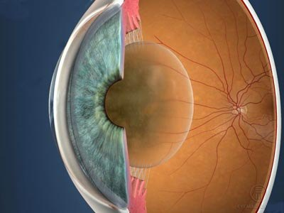 Surgery to remove cataracts proves highly successful