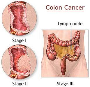 http://www.topnews.in/health/files/colon-cancer.jpg