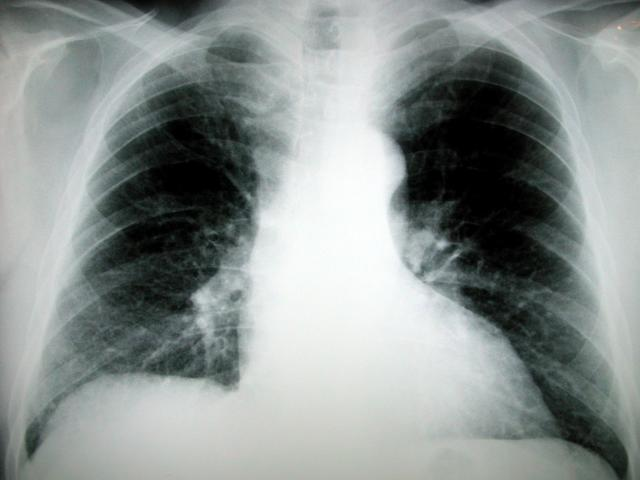 http://www.topnews.in/health/files/lungcancer_1.jpg