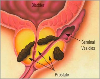 Observation for PRostate cancer questioned in blacks