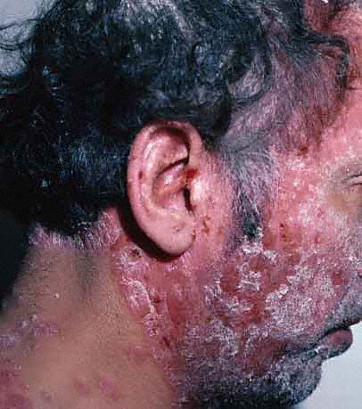Really bad psoriasis.