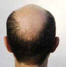 Appartements de Sansa - Page 3 Male-Baldness