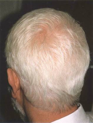 http://www.topnews.in/healthcare/sites/default/files/White-Hair.jpg