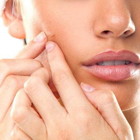 Acne vaccine comes closer to reality