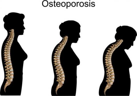 Osteoporosis drug passes clinical trail