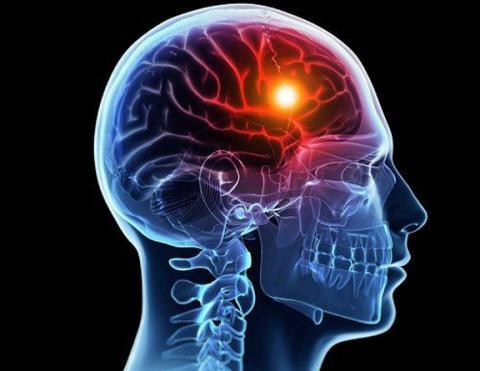 Risk score tools can improve stroke prediction in atrial fibrillation patients