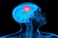 Combination of drugs may help kill brain cancer: Study