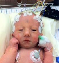 Brain scan of your newborn can reveal early signs of anxiety