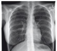 Here's a new treatment for TB patients