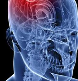 A combination therapy can now treat brain cancer