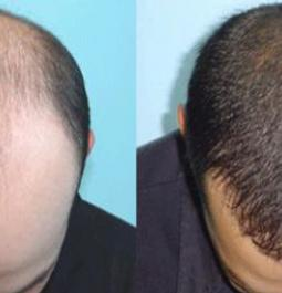 Here're the benefits of hair transplant surgery