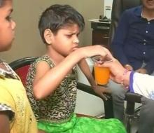 UP: Mowgli girl found in Bahraich forest showing signs of improvement