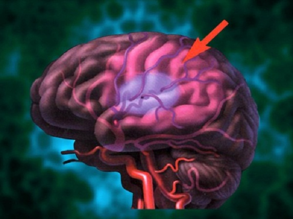 Experimental drug may help improve treatment for stroke